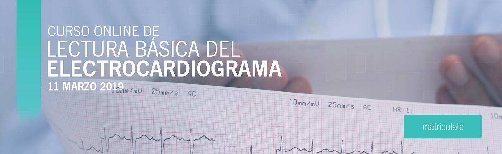 Lectura básica del electrocardiograma