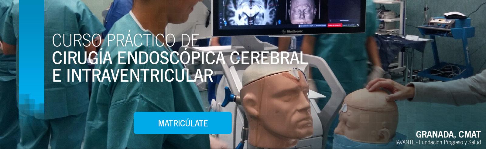 Curso Práctico de Cirugía Endoscópica Cerebral e Intraventricular